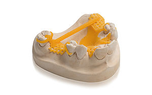Special resin for the 3D printing of CAD/Cast® partial denture frames with BEGO Varseo